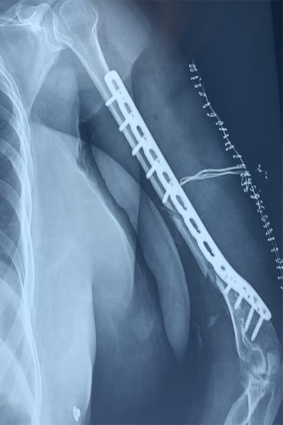 Ortho Specialist in Chandigarh